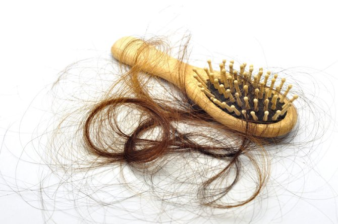 Hair Loss Experts in Lisburn, County Antrim