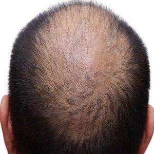 Hair loss experts in County Antrim at Natural Hair Company