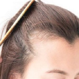 Women's hair loss experts at Natural Hair Company in Lisburn, County Antrim